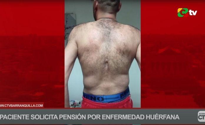 CÉSAR LÓPEZ TAMAYO SOLICITA PENSIÓN POR ENFERMEDAD HUÉRFANA